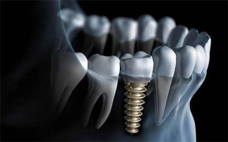 Dental-Implants3