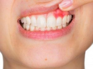 abscessed teeth