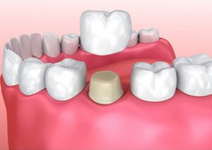 Porcelain Dental Crowns