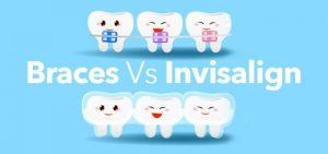 Braces VS Invisalign: Which One Will Work Best For You?